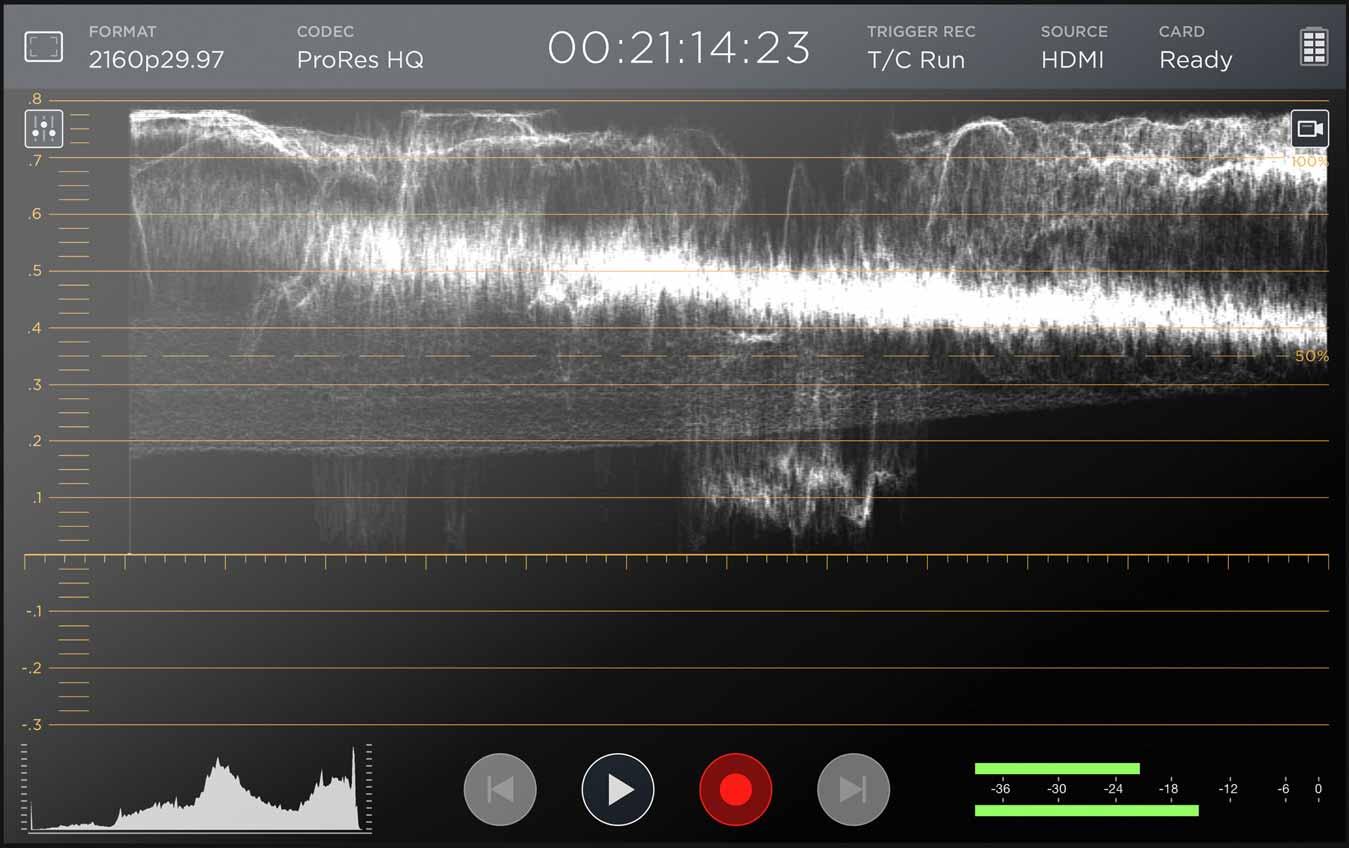 Video assist waveform