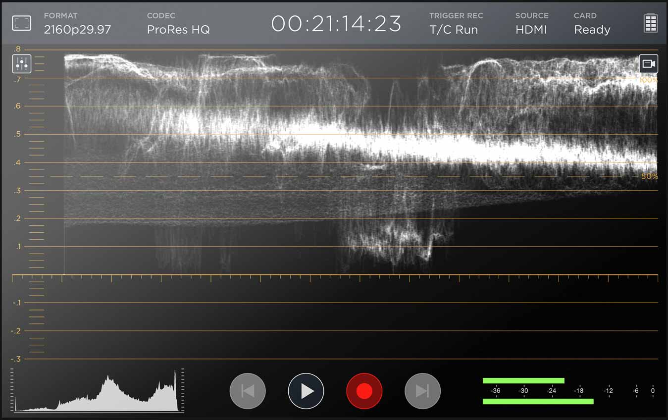 Video assist waveform